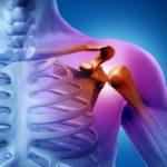 国立市で頚肩腕症候群の治療なら、やほ駅前鍼灸整骨院へ