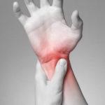 手首の捻挫