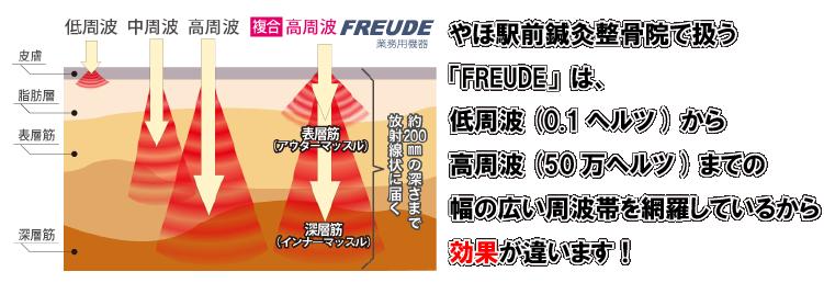 やほ駅前鍼灸整骨院で扱う 「FREUDE」は、 低周波(0.1ヘルツ)から 高周波(50万ヘルツ)までの 幅の広い周波帯を網羅しているから 効果が違います!